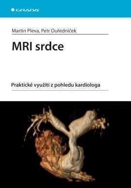 MRI srdce