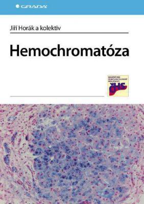 Hemochromatóza