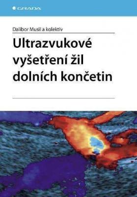 Ultrazvukové vyšetření žil dolních končetin