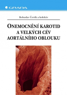Onemocnění karotid a velkých cév aortálního oblouku